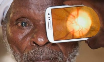 This device turns your phone into an eye exam machine